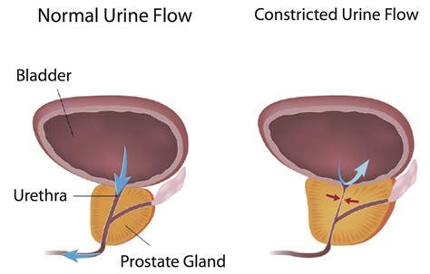 benign prostatic picture 10