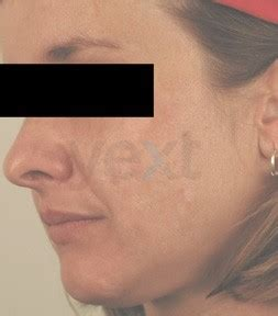 acne doctors in torrance picture 13