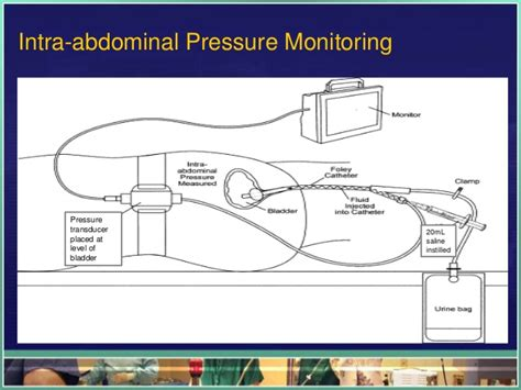 why measure bladder pressures picture 17