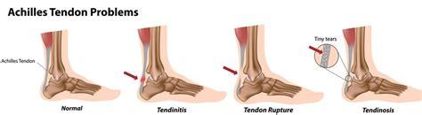 heel pain relief picture 2