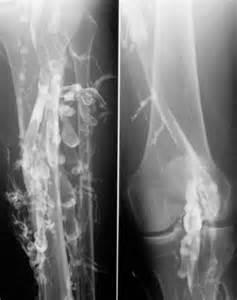 intestinal thrombus picture 14