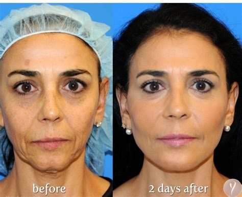 face lift skin turn black picture 10