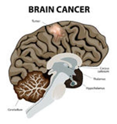 walnut size cancer brain tumor picture 13