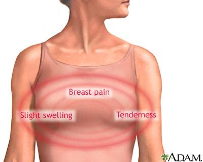 menopause breast changes picture 10