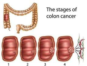 Staging of colon cancer by size of 15 picture 13