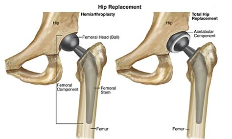 after having a total hip replacement two year's picture 10
