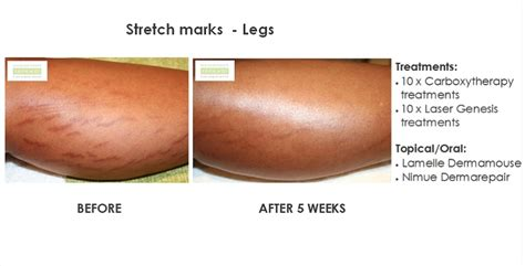 will a tan help stretch marks picture 7