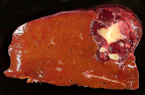 causes a liver hemangioma picture 2