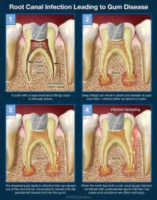 tooth pain nerve inflammation picture 6