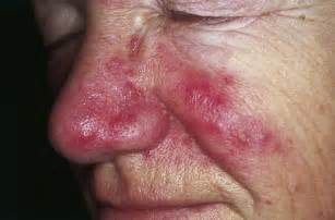 genesis pure acne symptons picture 17