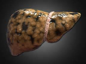 fatty deposits on the liver picture 15