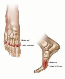 foot pain relief picture 1