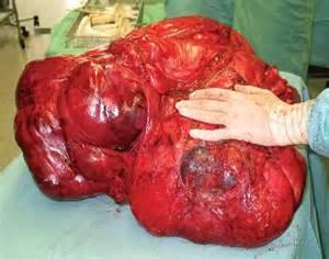 tumers in colon picture 7