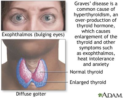 hyperactive thyroid symptoms picture 5