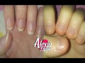 stop fingernails growing picture 2