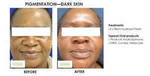 chemical ls on african american skin picture 9
