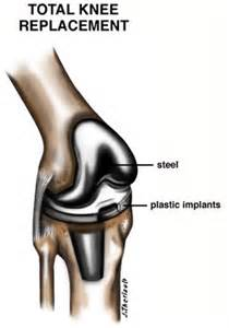 knee total joint replacements picture 2