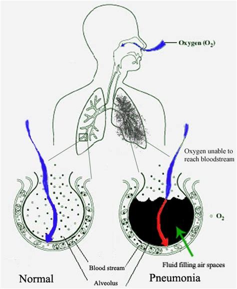pleural effusion natural treatment picture 13