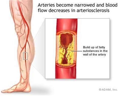 High blood pressure pain in arms and legs picture 8