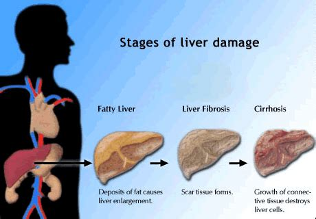 hep c and liver damage after treatment picture 6