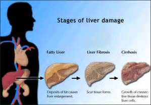 liver damage, treatment for liver damage picture 7