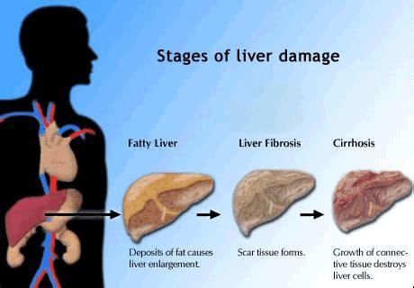 liver failure progression picture 1