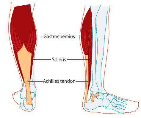 calve muscle tear picture 10