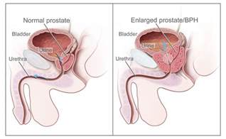 testosterone injections enlarged prostate picture 2