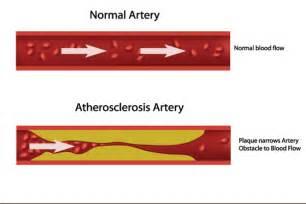 Hypercholesterolemia nutrients picture 11