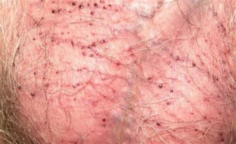 hair removal birmingham picture 3