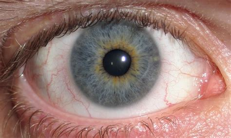 Ocular cholesterol deposits picture 10