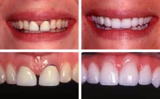 palm beach tooth whitening picture 10
