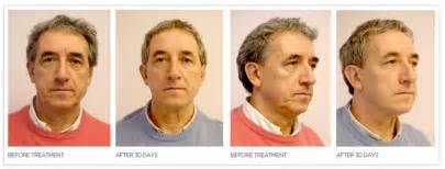 collagen hair treatment picture 11