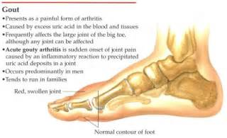 african american diet and gout picture 7