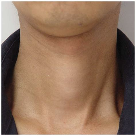 enlarged heart and hypothyroidism picture 13