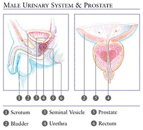 Bacterial infection of the prostate picture 1