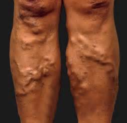 lump in leg muscle picture 5