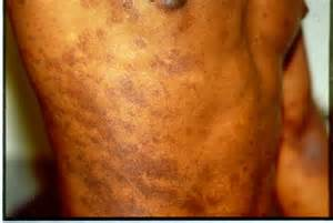 skin disorders in black skin people picture 2