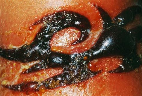 bad infected imbarressing skin picture 3