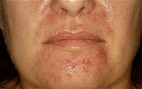 acne around mouth area picture 17
