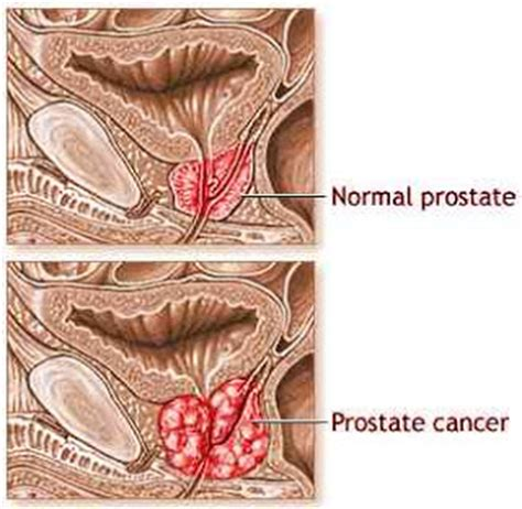 Constipation hard stools and the prostate inflamationl picture 1