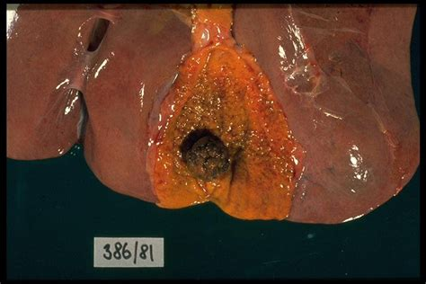 Colon and liver cleansing picture 13