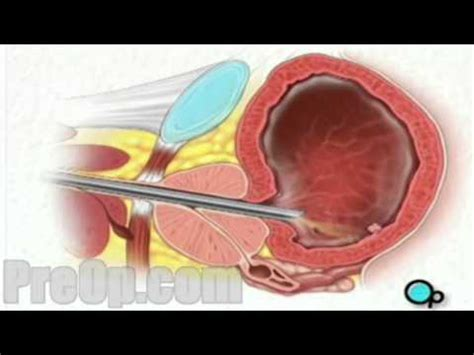 problems with small penis and cystoscope insertion picture 6