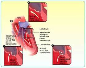homeopathic remedy for mitral valve prolapse picture 9