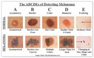 dermatologist skin of color picture 5