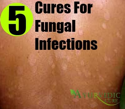 diabetes yeast infection picture 2