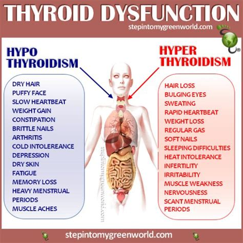 hypothyroid and leg cramps picture 2