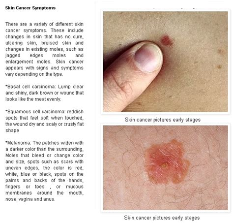 skin cancer pictures early stages picture 2