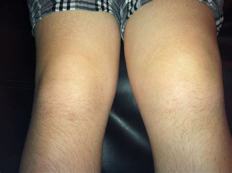 knee joint swelling picture 10