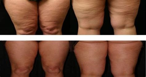 creams that get rid of cellulite picture 7